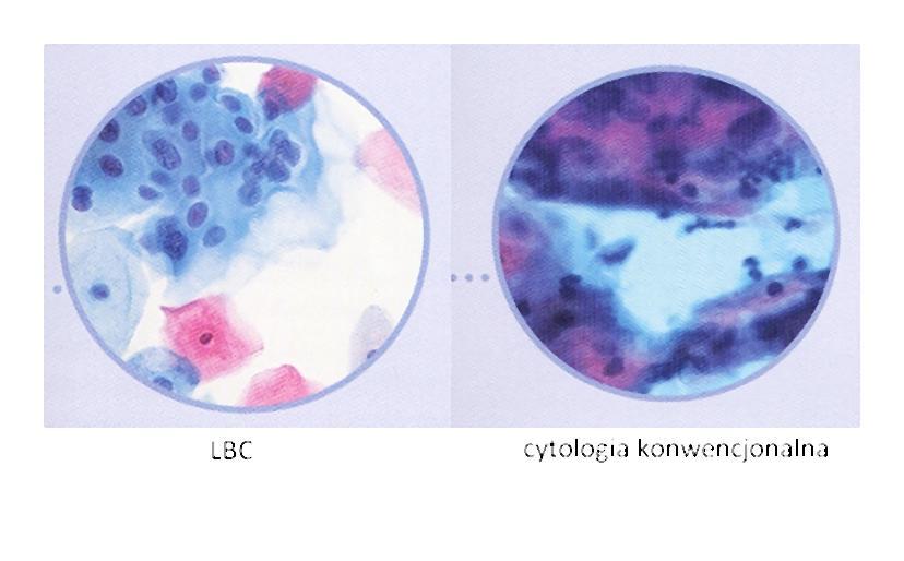 Czy wiesz że rak szyjki macicy wykryty we wczesnym stadium jest niemal całkowicie uleczalny?